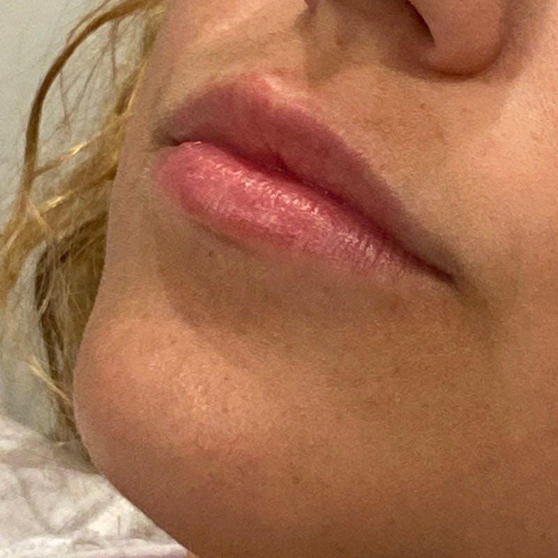 Lip Augmentation Gallery - Patient 10910411 - Image 1