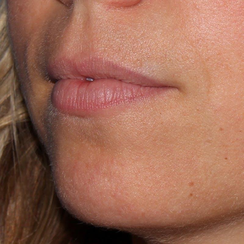 Lip Augmentation Gallery - Patient 10910412 - Image 1