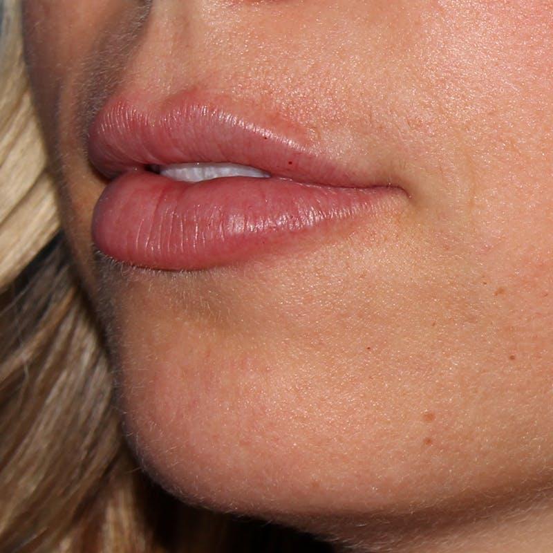 Lip Augmentation Gallery - Patient 10910412 - Image 2