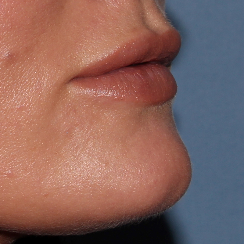 Lip Augmentation Gallery - Patient 10910413 - Image 7
