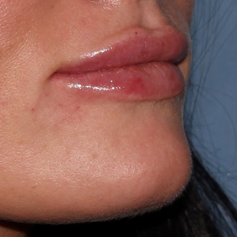 Lip Augmentation Gallery - Patient 10910413 - Image 2