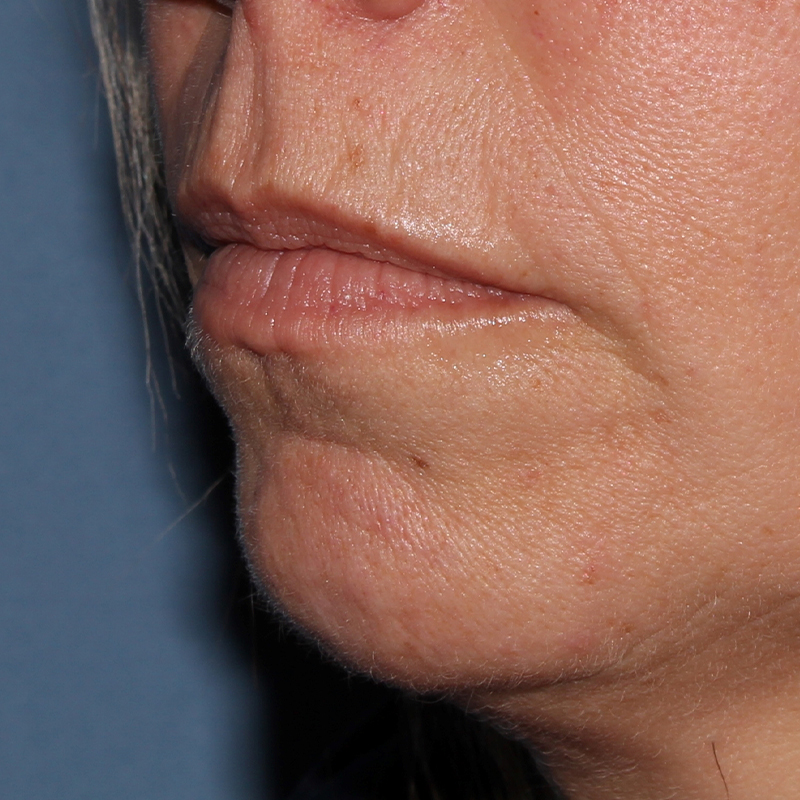Lip Augmentation Gallery - Patient 10910415 - Image 9