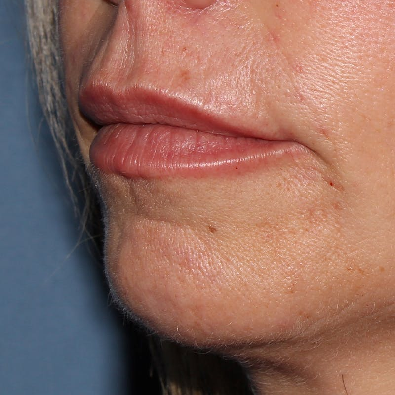 Lip Augmentation Gallery - Patient 10910415 - Image 2