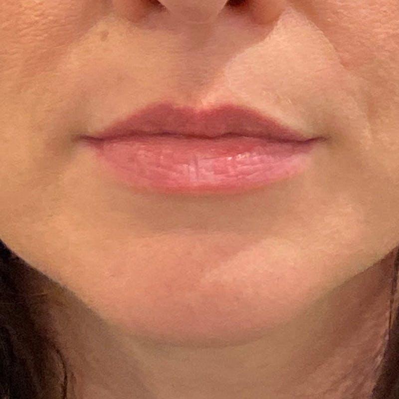Lip Augmentation Gallery - Patient 10910416 - Image 1