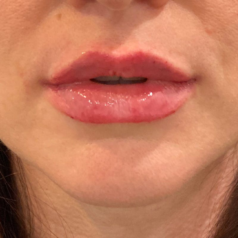 Lip Augmentation Gallery - Patient 10910416 - Image 2