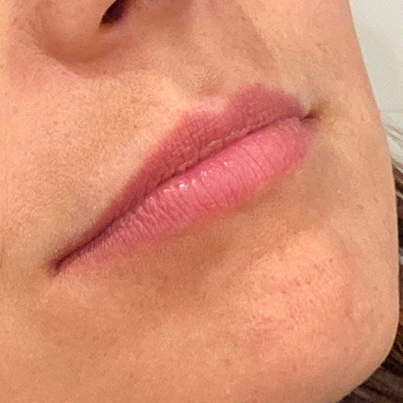Lip Augmentation Gallery - Patient 10910417 - Image 1