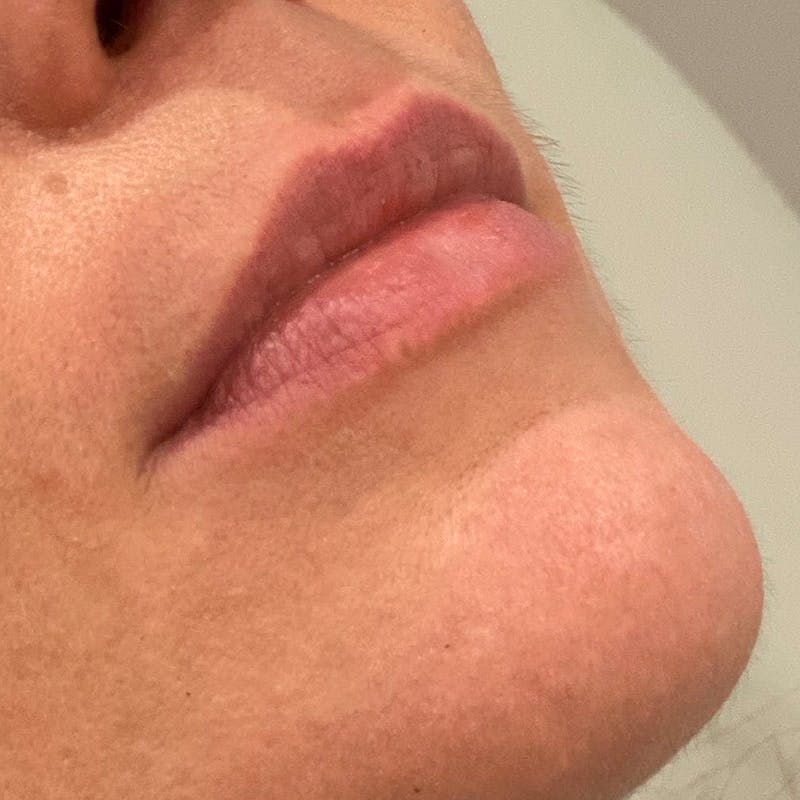 Lip Augmentation Gallery - Patient 10910416 - Image 3