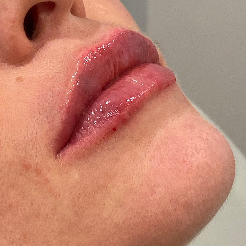 Lip Augmentation Gallery - Patient 10910416 - Image 4