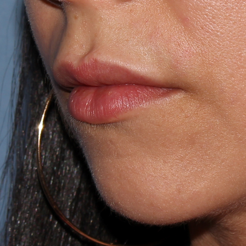 Lip Augmentation Gallery - Patient 11973530 - Image 12