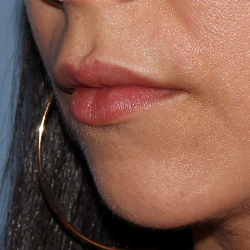 Lip Augmentation Gallery - Patient 11973530 - Image 1
