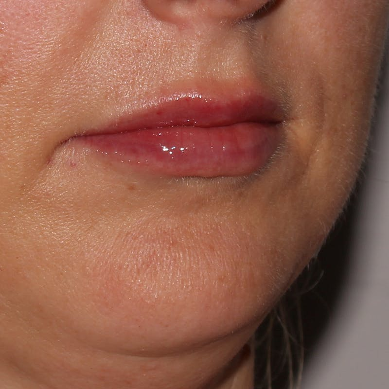 Lip Augmentation Gallery - Patient 11973529 - Image 2