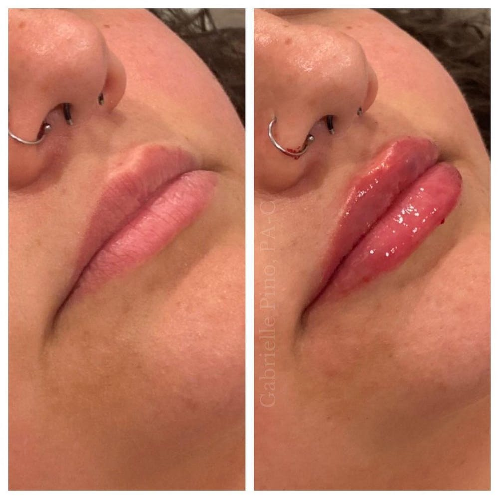 Lip Augmentation Gallery - Patient 10910414 - Image 1