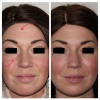 Tear Trough Fillers Gallery - Patient 24987368 - Image 1