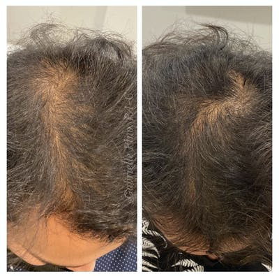 Hair Restoration  Gallery - Patient 24987372 - Image 1