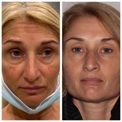 Full Face Rejuvenation Gallery - Patient 24987377 - Image 1