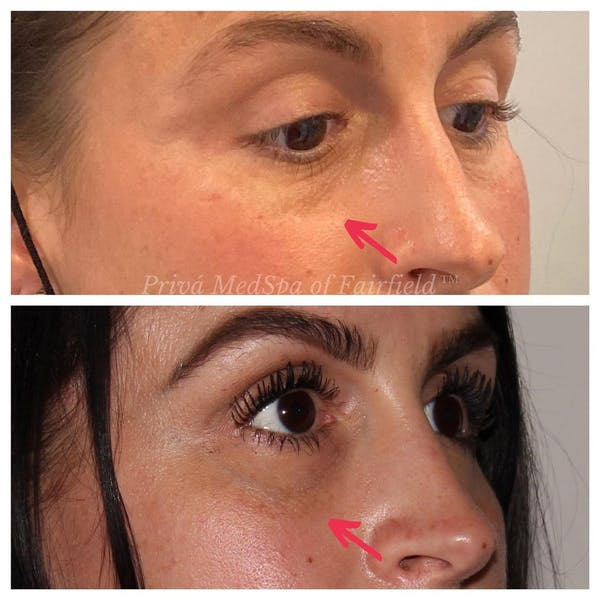 Tear Trough Fillers Gallery - Patient 24987396 - Image 2