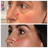 Tear Trough Fillers Gallery - Patient 24987396 - Image 1