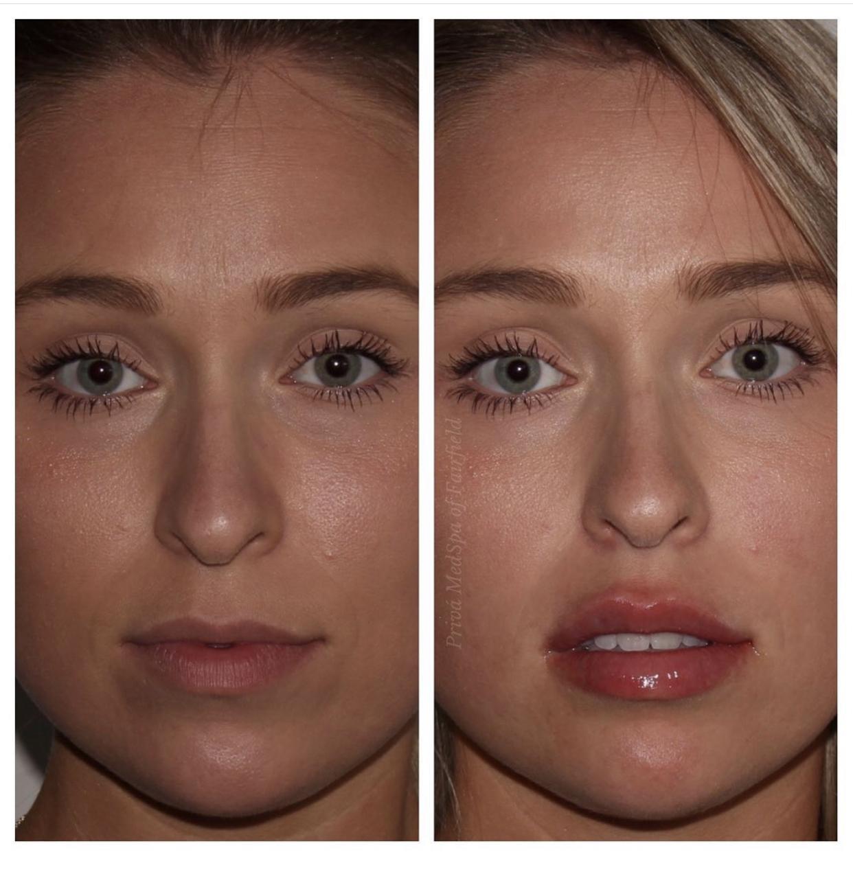 Lip Filler B/A