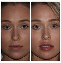 Lip Augmentation Gallery - Patient 24987426 - Image 1