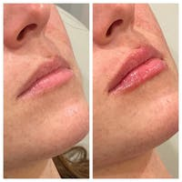 Lip Augmentation Gallery - Patient 24987457 - Image 1