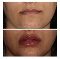 Lip Augmentation Gallery - Patient 24987459 - Image 1