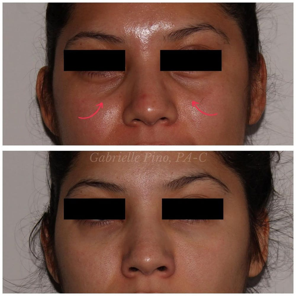 Tear Trough Fillers Gallery - Patient 24987490 - Image 1