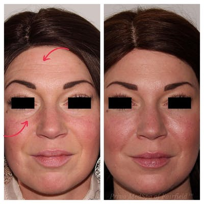 Full Face Rejuvenation Gallery - Patient 24987554 - Image 2