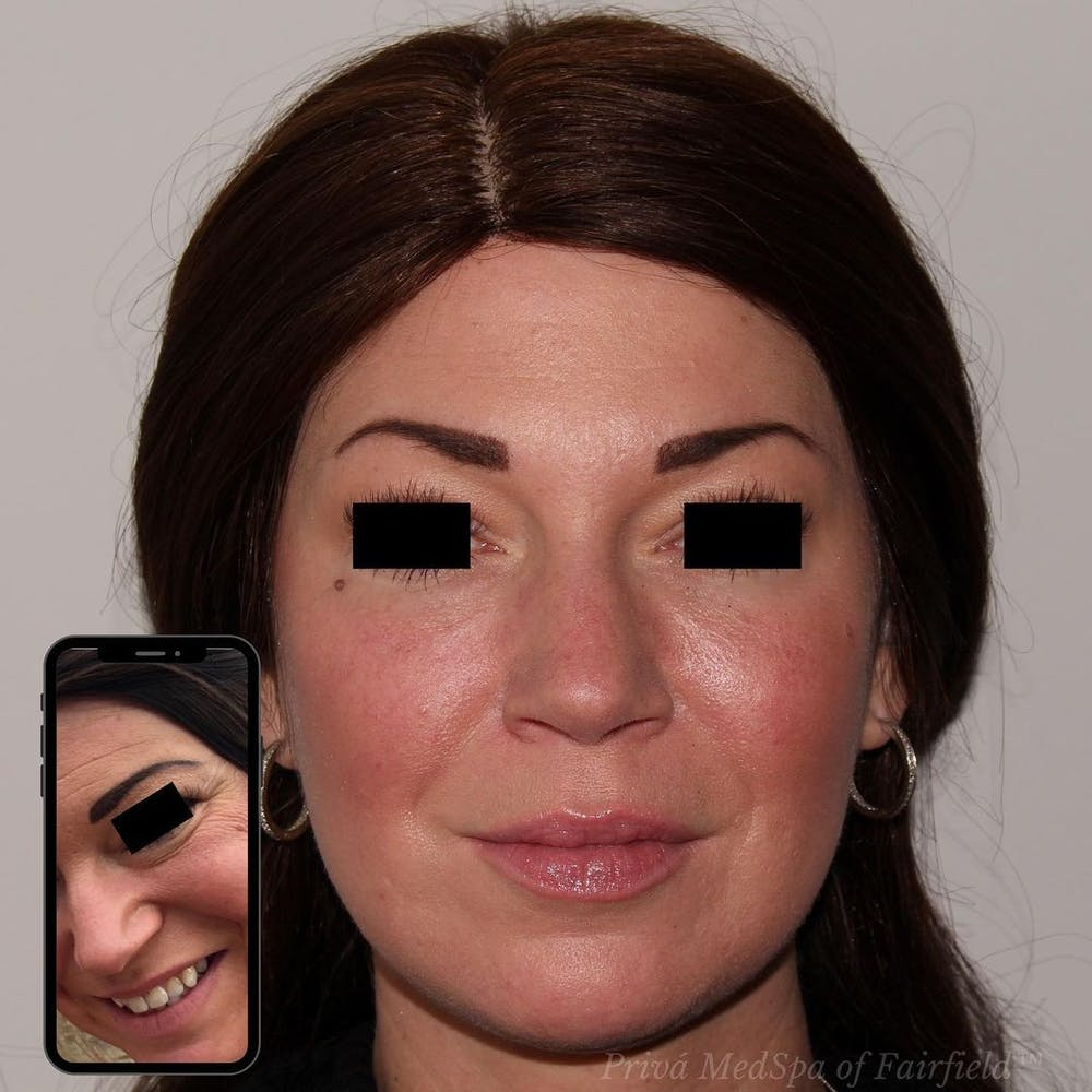Full Face Rejuvenation Gallery - Patient 24987554 - Image 1