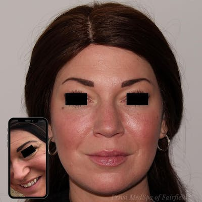 Full Face Rejuvenation Gallery - Patient 24987554 - Image 1