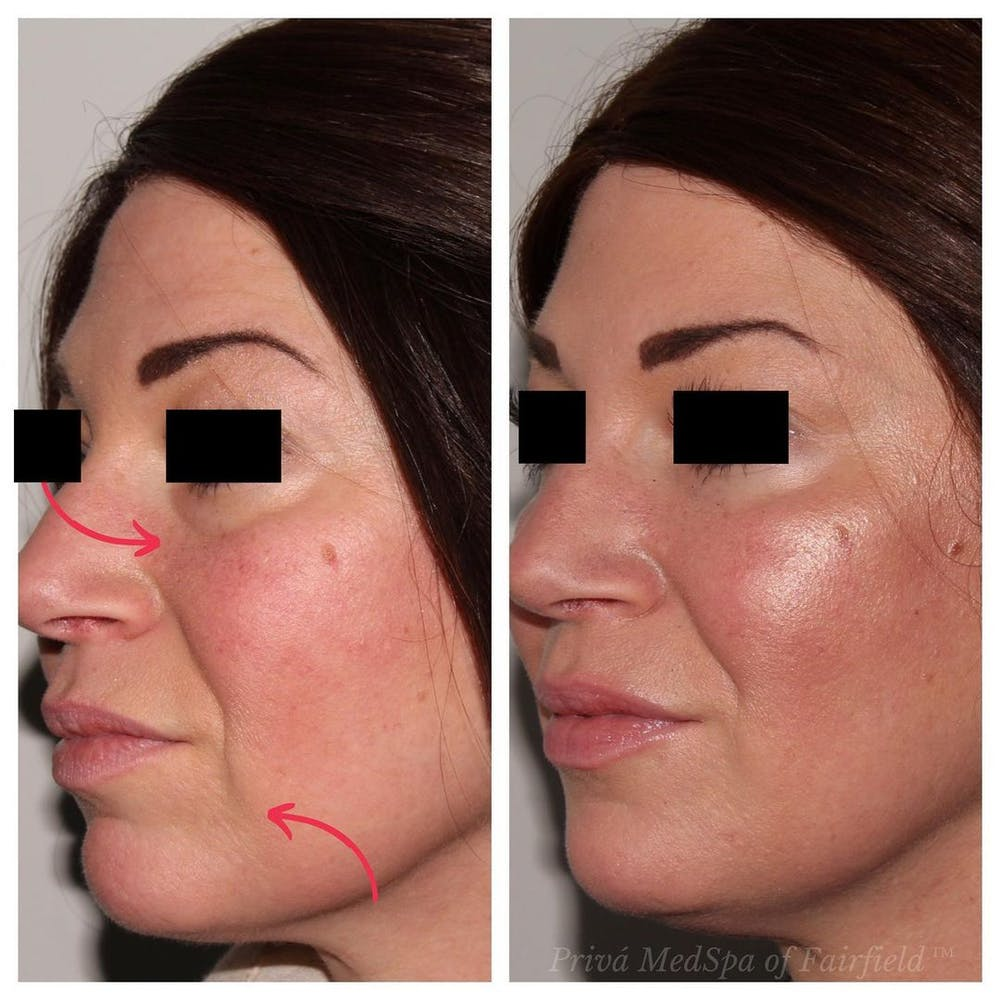 Full Face Rejuvenation Gallery - Patient 24987554 - Image 3