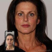 Full Face Rejuvenation Gallery - Patient 24987350 - Image 1