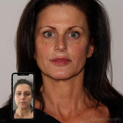 Full Face Rejuvenation Gallery - Patient 24987350 - Image 1