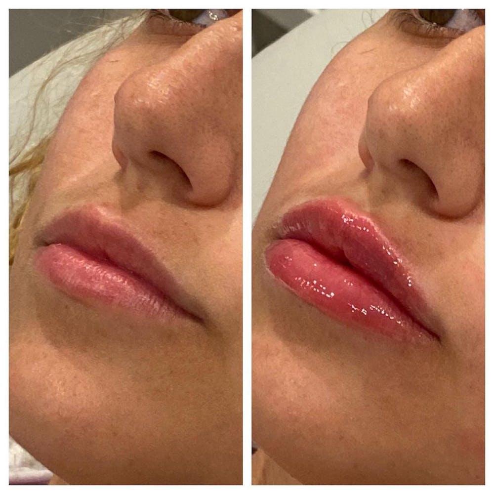 Lip Augmentation Gallery - Patient 24987614 - Image 2