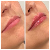 Lip Augmentation Gallery - Patient 24987627 - Image 1