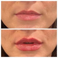 Lip Augmentation Gallery - Patient 24987644 - Image 1