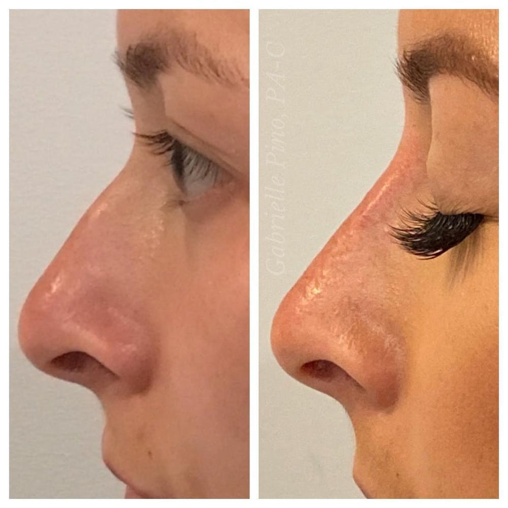 Non-Surgical Rhinoplasty Gallery - Patient 10910384 - Image 1