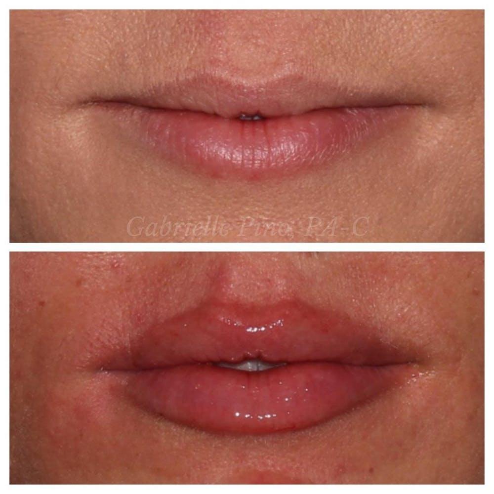 Lip Augmentation Gallery - Patient 10910408 - Image 1