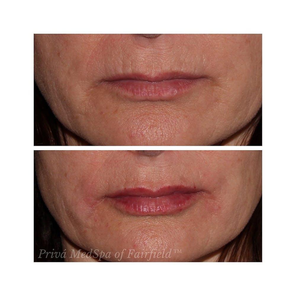 Lip Augmentation Gallery - Patient 24988722 - Image 1