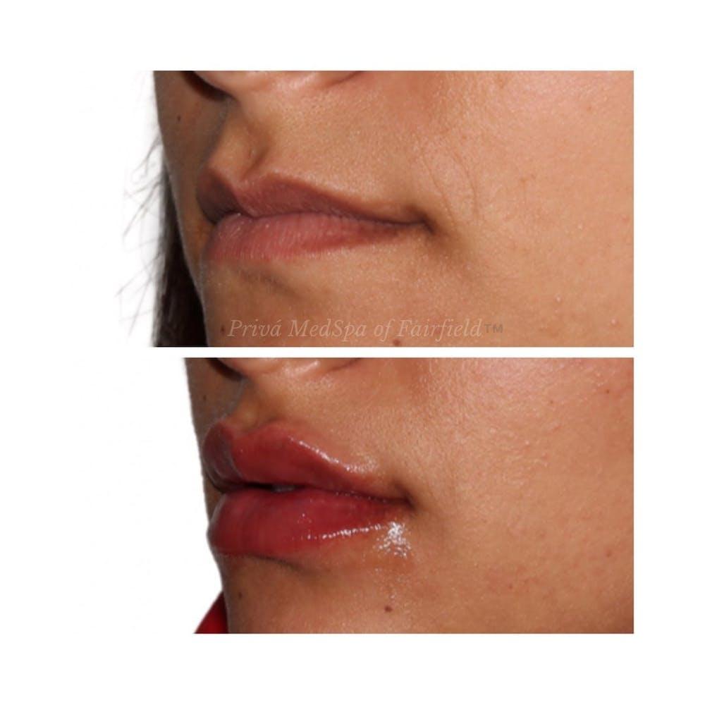 Lip Augmentation Gallery - Patient 24987459 - Image 2
