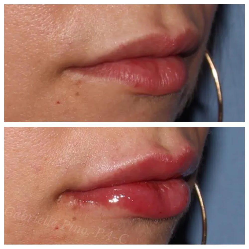 Lip Augmentation Gallery - Patient 24988600 - Image 2