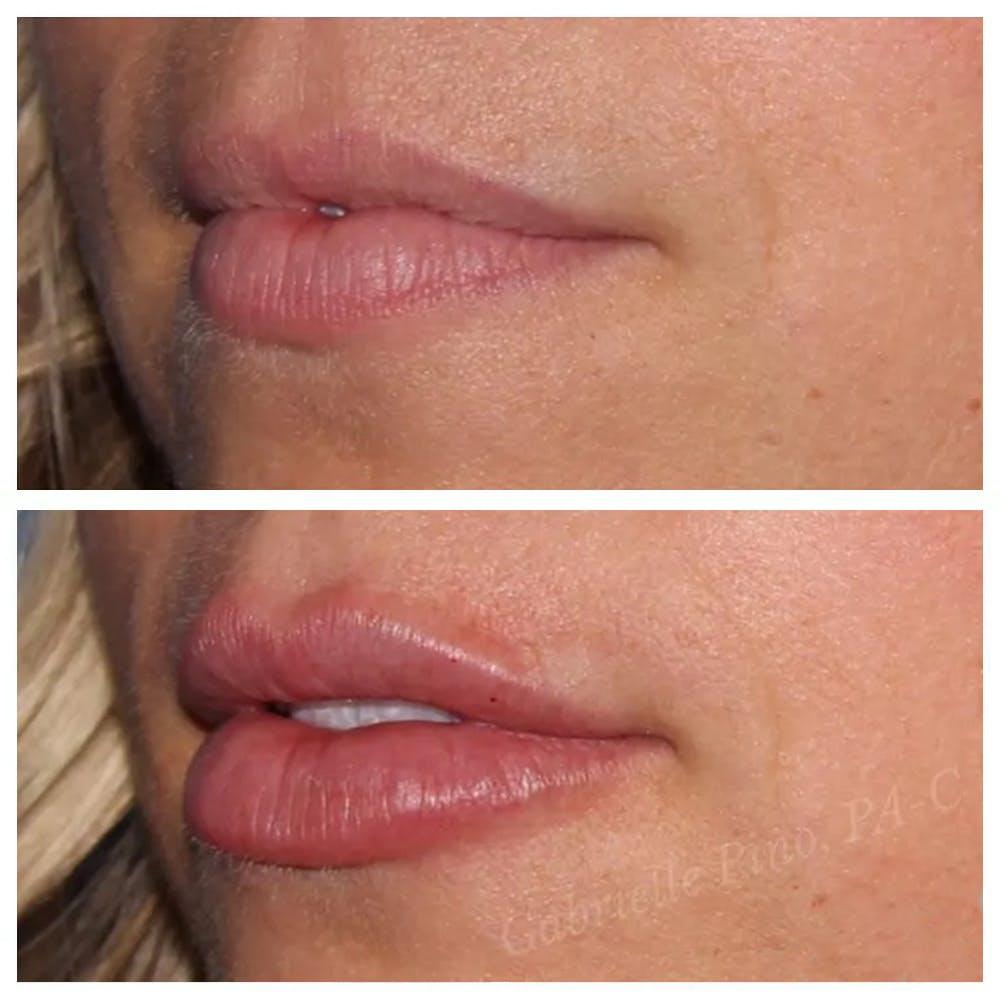 Lip Augmentation Gallery - Patient 24988450 - Image 1