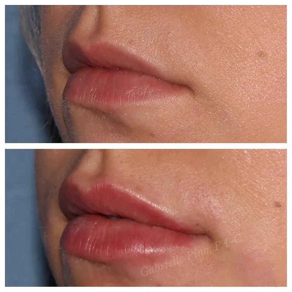 Lip Augmentation Gallery - Patient 24988717 - Image 1