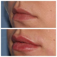 Lip Augmentation Gallery - Patient 24988717 - Image 1