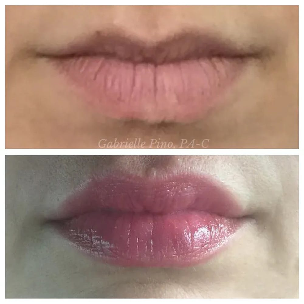 Lip Augmentation Gallery - Patient 24988721 - Image 1