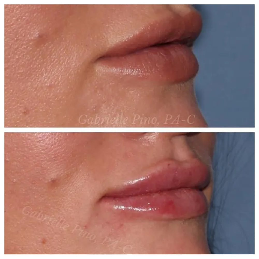 Lip Augmentation Gallery - Patient 24988632 - Image 1