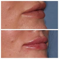 Lip Augmentation Gallery - Patient 24988632 - Image 1