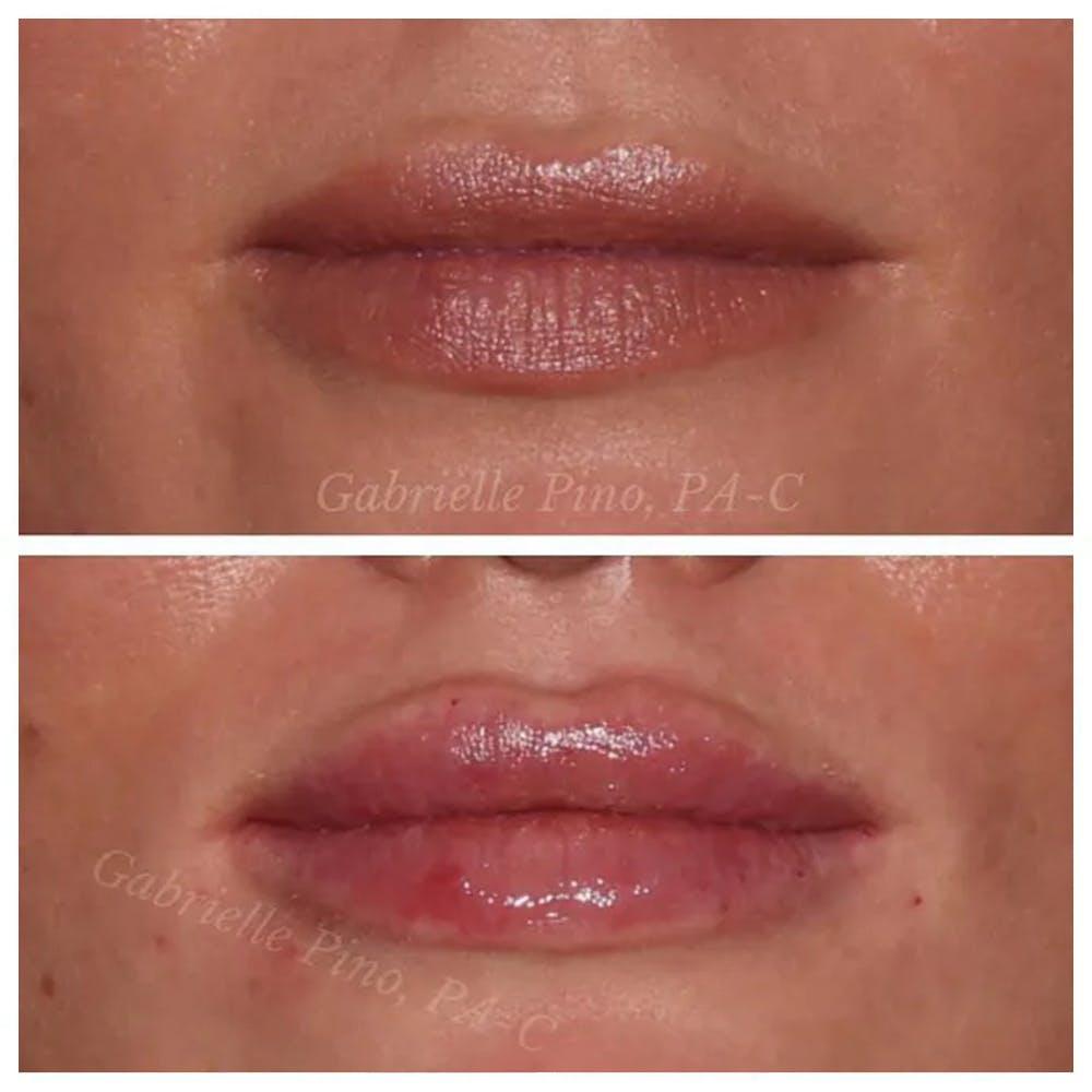 Lip Augmentation Gallery - Patient 24988632 - Image 2