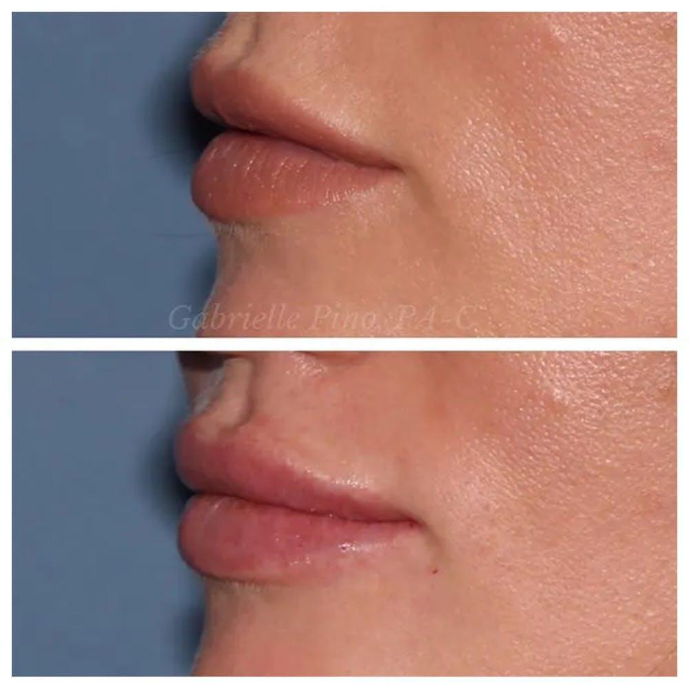 Lip Augmentation Gallery - Patient 24988632 - Image 3