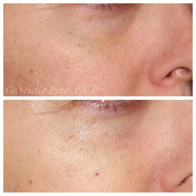 Tear Trough Fillers Gallery - Patient 24988583 - Image 1