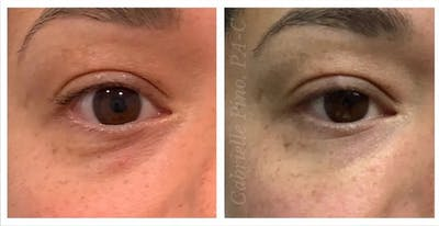 Tear Trough Fillers Gallery - Patient 24988389 - Image 1